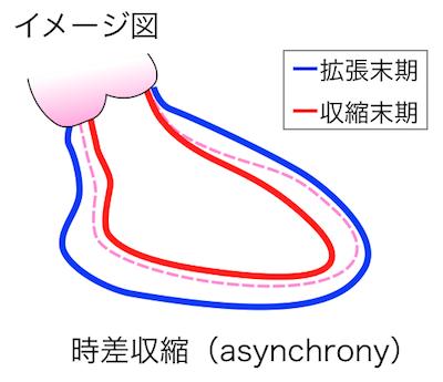時差収縮(asynchrony)