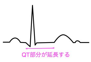 QT延長症候群