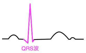 QRS波 心電図